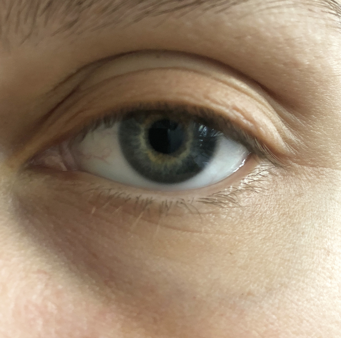 This strip was noticeable on the eyelid although it did provide a lift - Contours Rx®